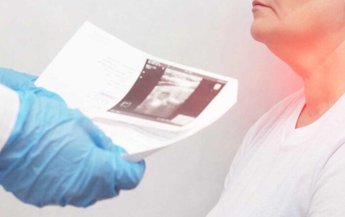 Seleniul si tiroidita Hashimoto