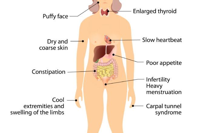 Cum Se Manifesta Hipotiroidia La Adult?